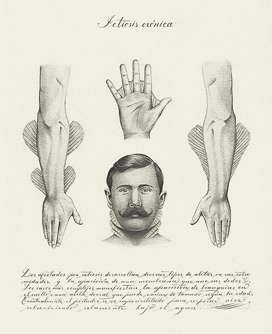 Juan Osorno. Ictiosis crónica. Lapíz sobre papel. 29,8 x 22,2 cm. 2018. Foto cortesía.